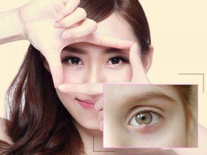 Cách chữa lẹo mắt nhanh tại nhà