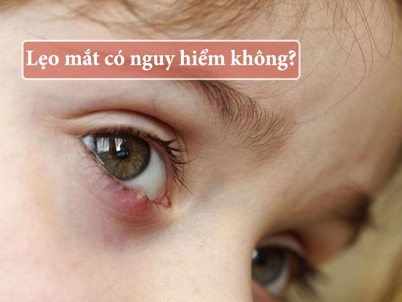 Lẹo mắt có nguy hiểm không?