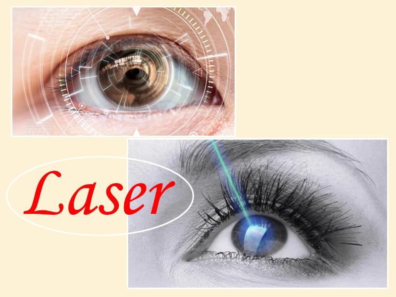 Chữa cận thị bằng cách sử dụng tia Laser.