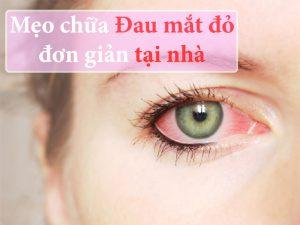 Mẹo chữa đau mắt đỏ đơn giản tại nhà