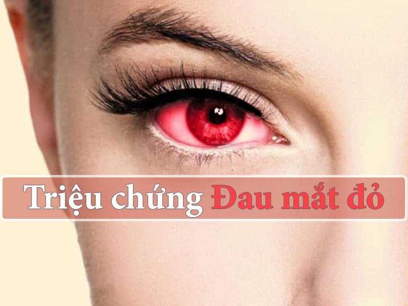 Triệu chứng của bệnh đau mắt đỏ