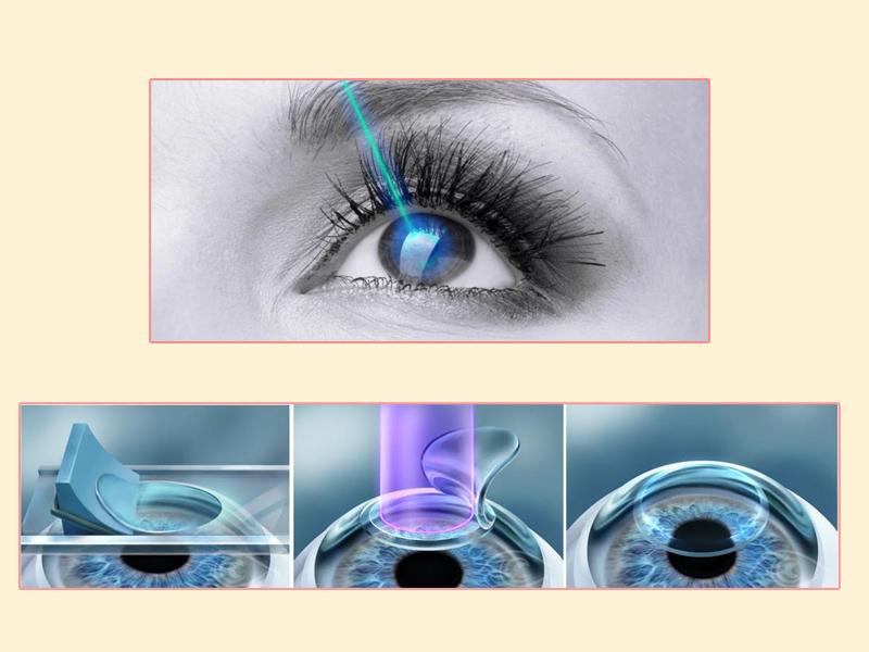 Phương pháp mổ mắt cận thị lasik.