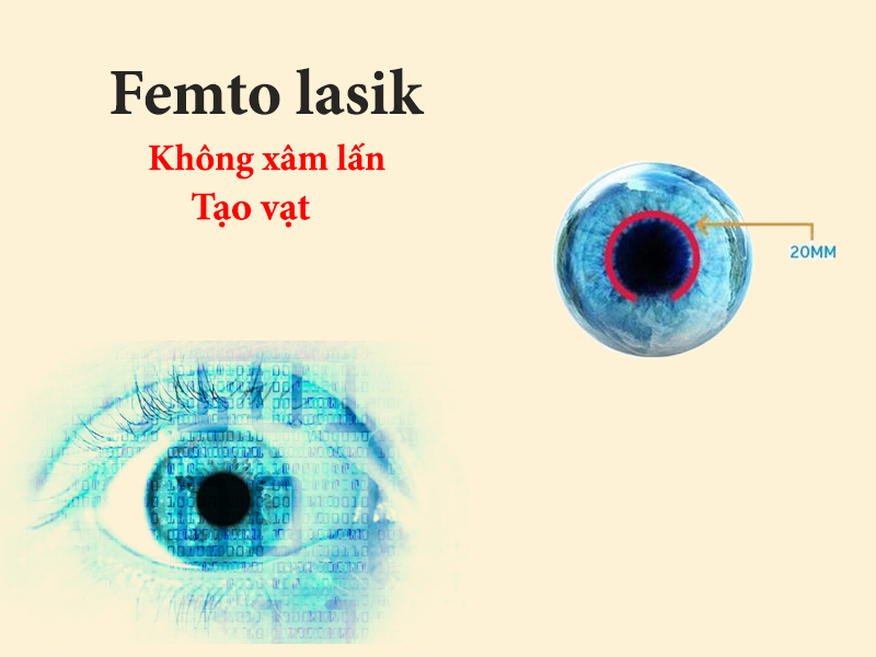 Phương pháp mổ cận thị Femto Lasik