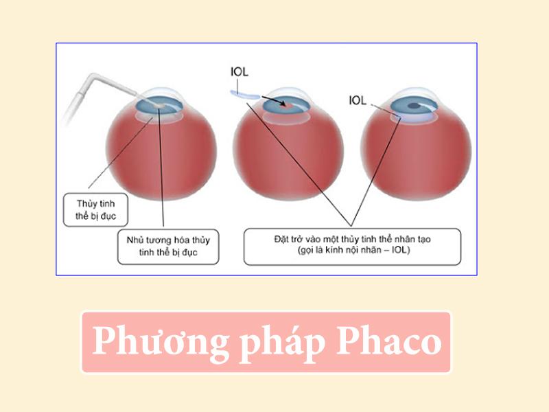 Phương pháp phẫu thuật nội nhãn Phaco