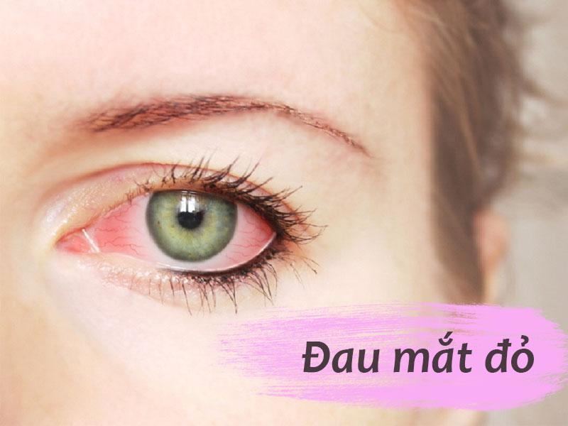 Tùy theo nguyên nhân mà triệu chứng của bệnh đau mắt đỏ sẽ khác nhau